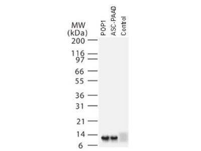 Rabbit Polyclonal ASC2 Antibody