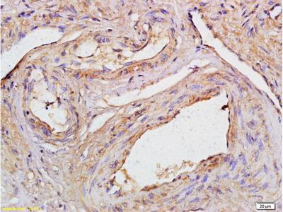 CCDC90A Polyclonal Antibody, Biotin Conjugated