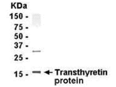 Transthyretin Antibody