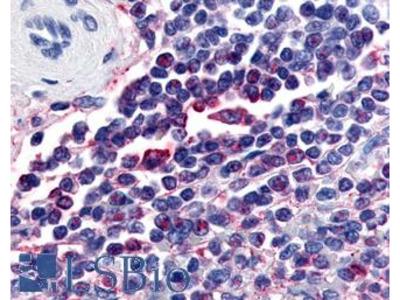 ATRN / Attractin Antibody