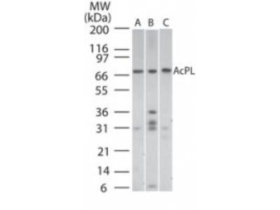 IL-18 R beta / IL-1 R7 / ACPL Antibody