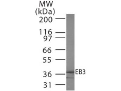 EB3 Antibody