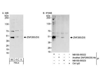 Rabbit Polyclonal ZRANB2 Antibody