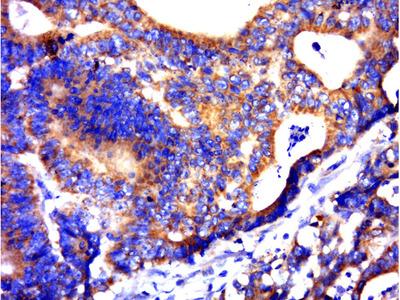 C21ORF62 Antibody