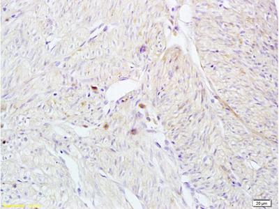 CD161 Antibody, ALEXA FLUOR® 350 Conjugated
