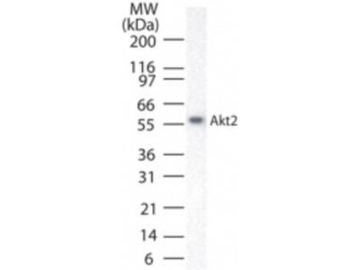 AKT2 /3 Antibody
