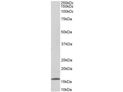 anti 6CKine / CCL21