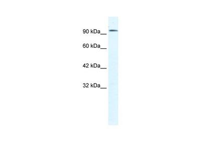 CLCN3 antibody - C-terminal region (ARP35504_T100)