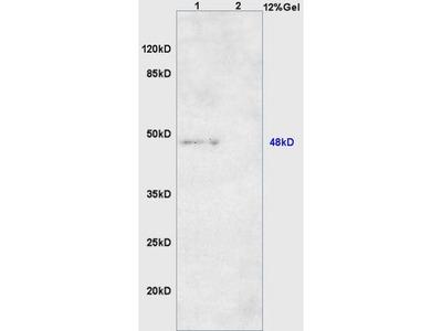 ARRDC1 Antibody, FITC Conjugated