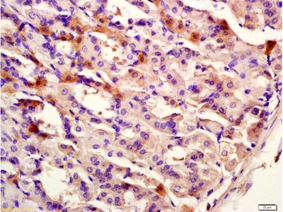 CK12 Antibody