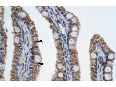 PITX2 antibody - N-terminal region (ARP35634_T100)