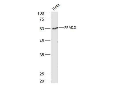 PPM1D Antibody, ALEXA FLUOR® 350 Conjugated