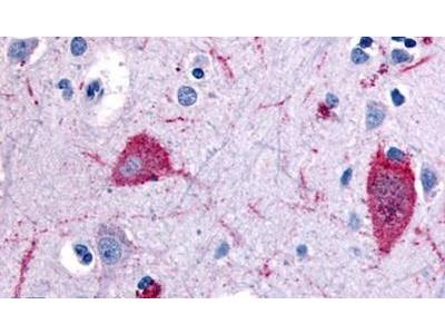 HTR5A Polyclonal Antibody