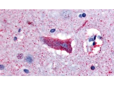 CHRM3 Antibody
