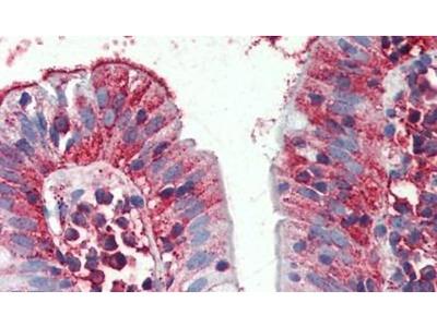 C8orf55 Polyclonal Antibody