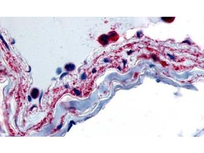 PTPMT1 Antibody