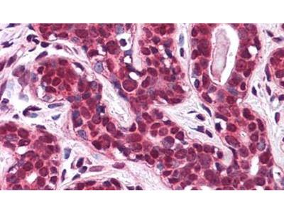 SLC5A6 Polyclonal Antibody