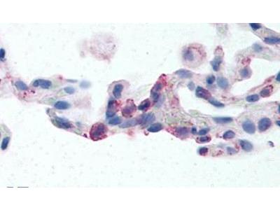 EMR2 Polyclonal Antibody