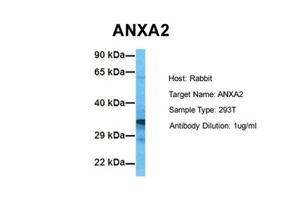 ANXA2 antibody - C-terminal region (ARP36588_T100)