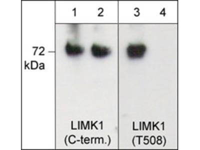 LIMK1 (Thr-508)[LIMK2 (Thr-505], phospho-specific Antibody