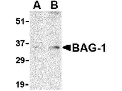 RABBIT ANTI BAG1 (N-TERMINAL)