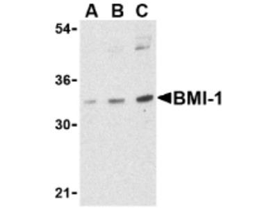 RABBIT ANTI BMI-1