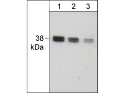 IκBα (C-terminus) Antibody
