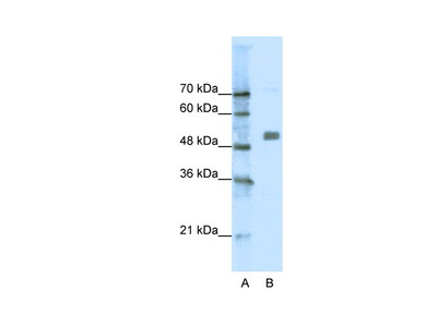 CHRNA9 antibody - N-terminal region (AVARP13019_P050)