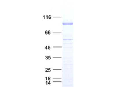 Recombinant protein of human E1A binding protein p300 (EP300),residues 1066-1707,with C-terminal DDK tag,expressed in sf9 cells