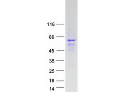 SAMD7 (NM_182610) Human Mass Spec Standard