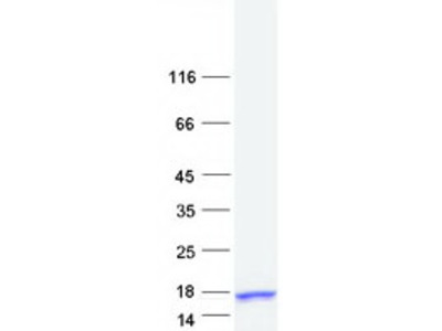Recombinant protein of human S100 calcium binding protein A7-like 2 (S100A7L2)