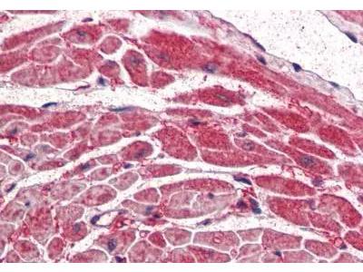 Goat Polyclonal PIK3CA Antibody