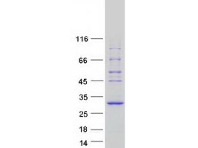 SPATA25 (NM_080608) Human Mass Spec Standard