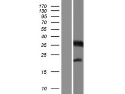 Transient overexpression lysate of mitochondrial fission regulator 1 (MTFR1), nuclear gene encoding mitochondrial protein, transcript variant 2