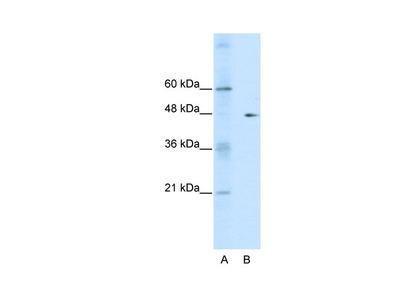 GDI2 antibody - C-terminal region (AVARP13037_P050)