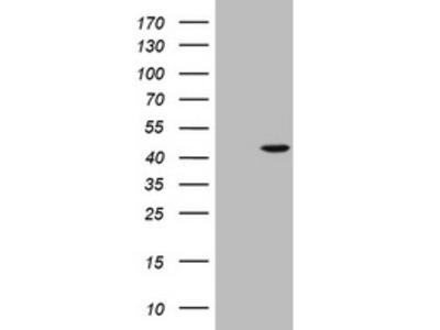 AMACR mouse monoclonal antibody,clone OTI5F10