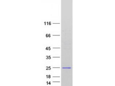 SAPCD1 (NM_001039651) Human Mass Spec Standard