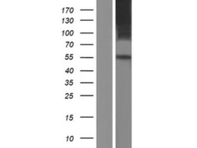 SLC41A1 (NM_173854) Human Over-expression Lysate