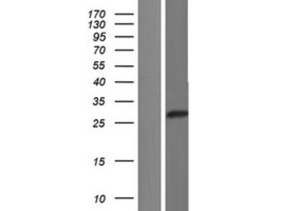 Transient overexpression lysate of chromosome 1 open reading frame 229 (C1orf229)