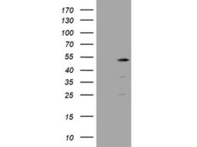 Carrier-free (BSA/glycerol-free) TBC1D13 mouse monoclonal antibody,clone OTI2C5