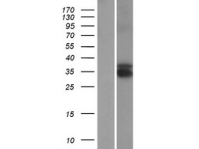 Transient overexpression lysate of testis expressed 13B (TEX13B)