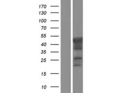 Transient overexpression lysate of choline kinase beta (CHKB)
