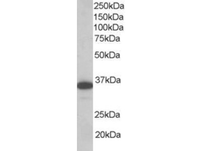 LAT Antibody