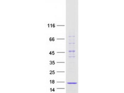 SNRPD2 (NM_004597) Human Mass Spec Standard