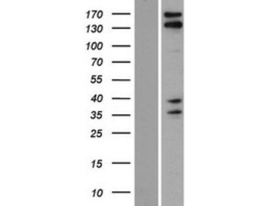 Transient overexpression lysate of KIAA1543 (KIAA1543), transcript variant 1