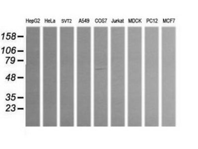 ALDH1A3 mouse monoclonal antibody, clone OTI4A3 (formerly 4A3)
