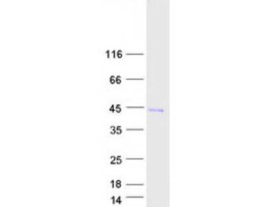 SAMD14 (NM_174920) Human Mass Spec Standard