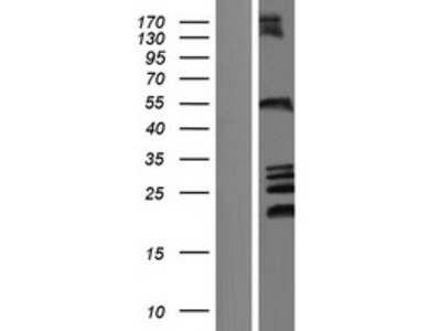 Transient overexpression lysate of zinc finger, FYVE domain containing 27 (ZFYVE27), transcript variant 1