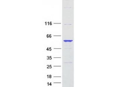 SERBP1 (NM_001018067) Human Mass Spec Standard