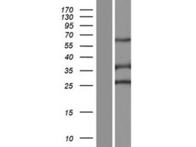 Sperm Flagellar 2 (SPEF2) (NM_144722) Human Over-expression Lysate